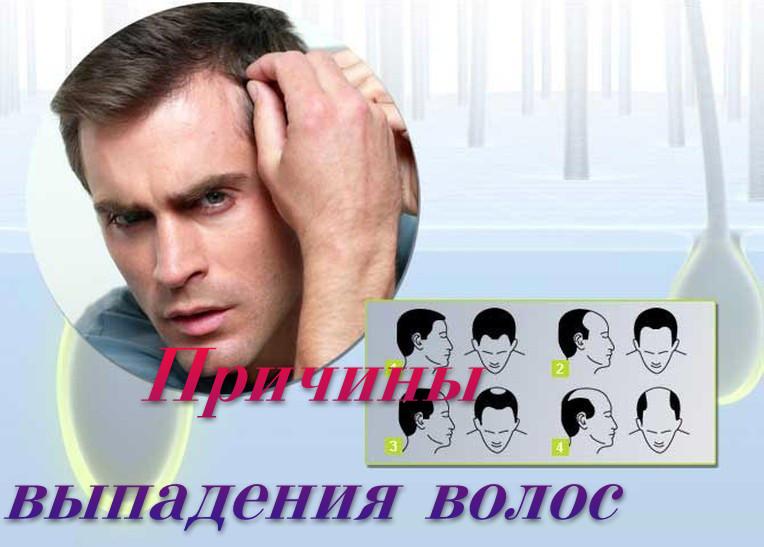Что такое постпубертатное выпадение волос